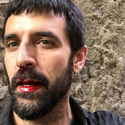 Jordi Borràs, quan va ser agredit pel policia espanyol